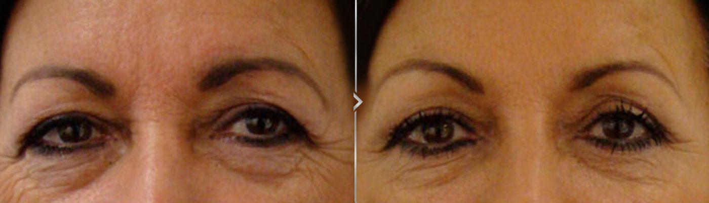 Forehead Line Reduction. Before and After Botox Results Photo.