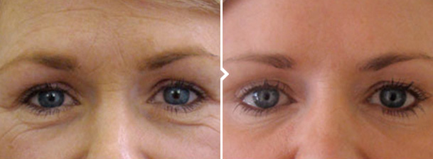 Frown Line Reduction - Cosmetic Procedure Before and After Photos