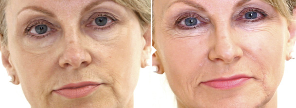 Dermal Cheek Fillers - Before and After Photos Image