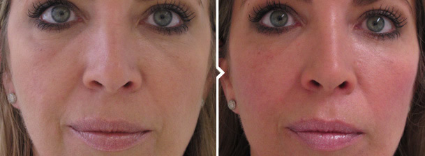 Cheek Filler Treatment Before and After Photo