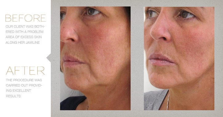 Chemical Peel Treatment Before and After Photo