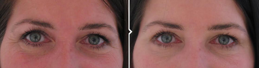 Crows Feet - Before and After Botox Treatment Results Photos