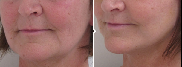 Face and Neck Lift Before and After Photo of Mouth and Jawline Area