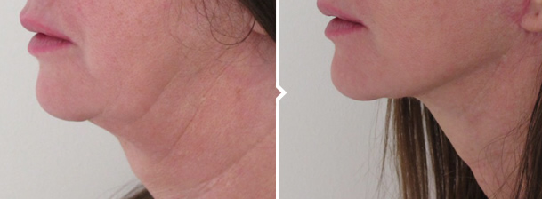 Face and Neck Lift Before and After Photo of Neck, Jaw and Mouth Area