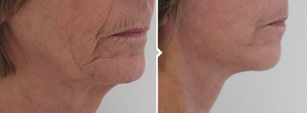 Face and Neck Lift Before and After Photo of Mouth and Neck and Jaw Area