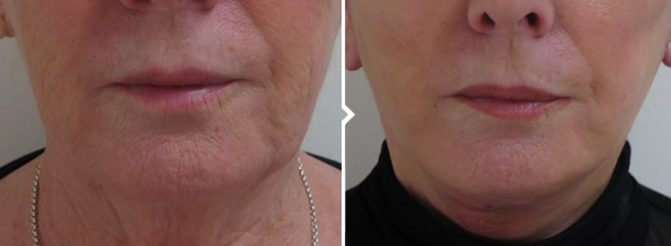 Face and Neck Lift Before and After Photo Front View of Mouth and Lips