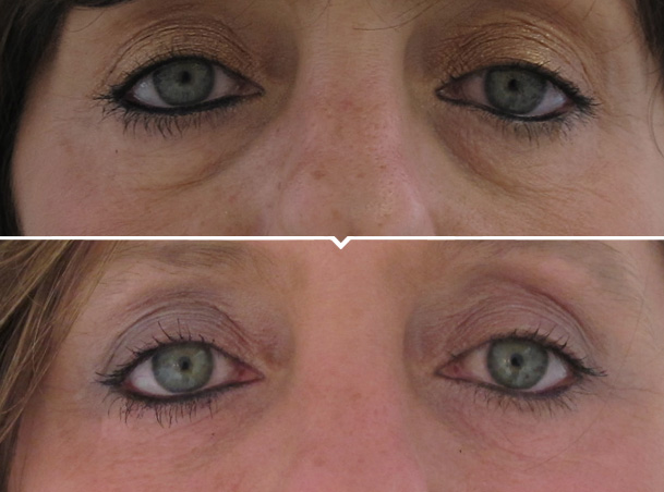 Under Eye Hollow Facial Fillers Image