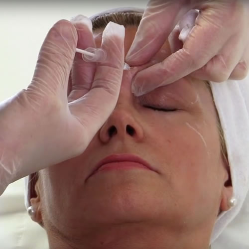 Filler Treatments Video Image