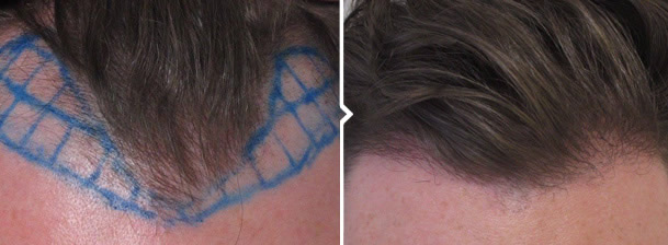 Hair Transplant FUE Procedure Before and After Photo