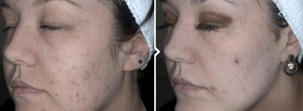 IPL Photorejuvenation Treatment for Acne Before and After Photo