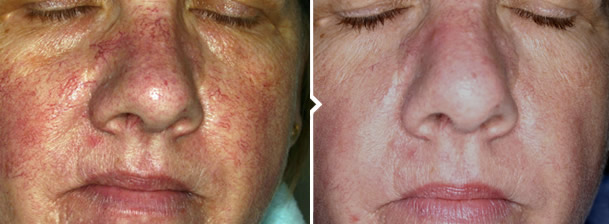 IPL Photorejuvenation Treatment for Thread Vein Removal Before and After Photo