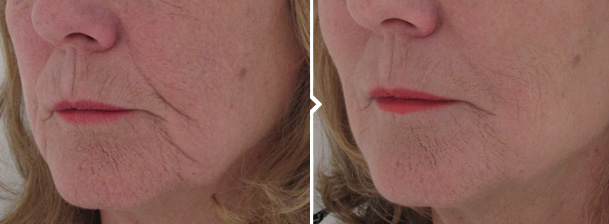 Jawline and Jowls Facial Fillers Before and After Pics