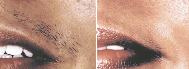 Laser Hair Removal Treatment Upper Lip Before and After Photo