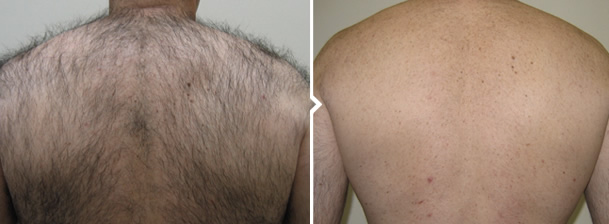 Laser Hair Removal Treatment Man's Back Before and After Photo