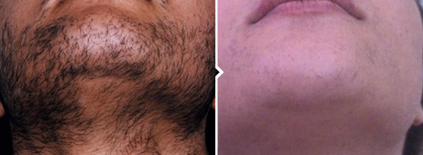 Laser Hair Removal Treatment Chin and Neck Before and After Photo