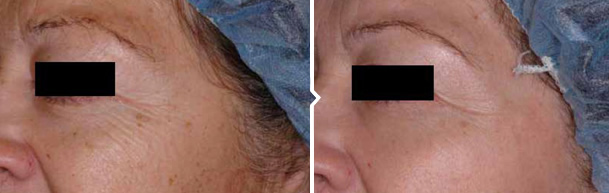 Laser Skin Resurfacing Treatment Before and After Photo