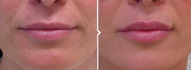 Lip Filler (Non Surgical Enhancement) Before and After Photo