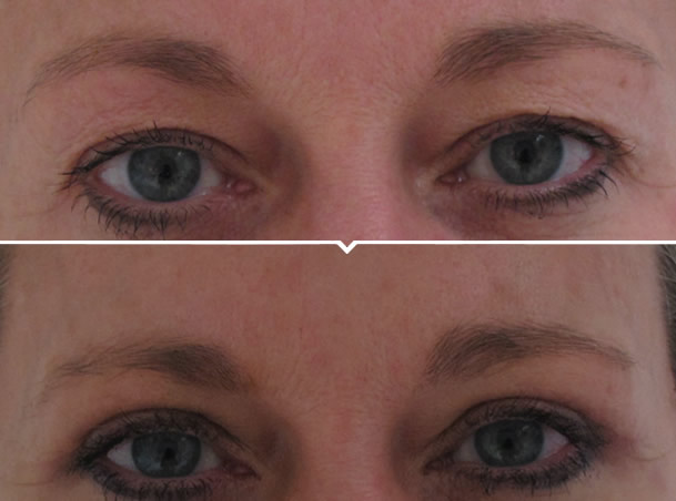 Lower Eye Bag Removal Surgery Before and After Photo