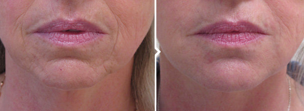 Non-surgical Chin Augmentation with Fillers Before and After Photo