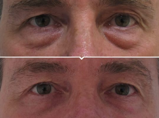 Non-Surgical Eye Lift Surgery Before and After Photo