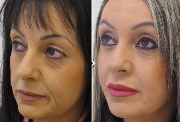 Non-Surgical Facelift Surgery Before and After Photo