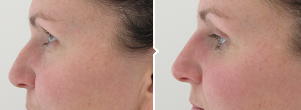Non-surgical Nose Reshaping Cosmetic Procedure Before and After Photo