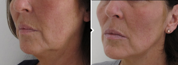 One Stitch Facelift Surgery Before and After Photo