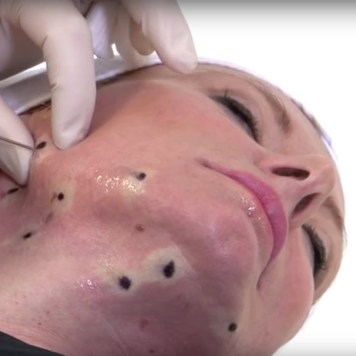 One Stitch Facelift Video Image