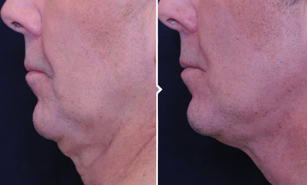 Profound RF Treatment Before and After Photo