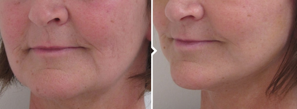 Short Scar Facelift Surgery Before and After Photo