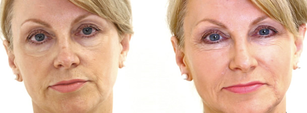 Skin Pigmentation Removal Treatment Face Before and After Photo