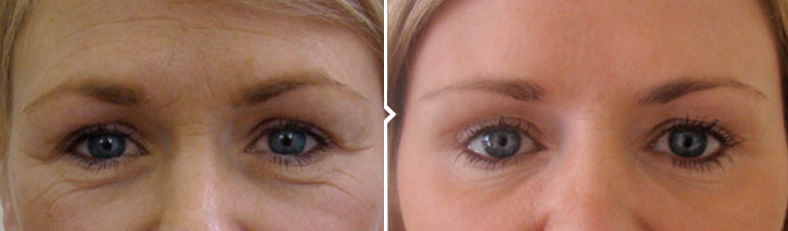 Skin Pigmentation Removal Treatment Around Eyes Before and After
