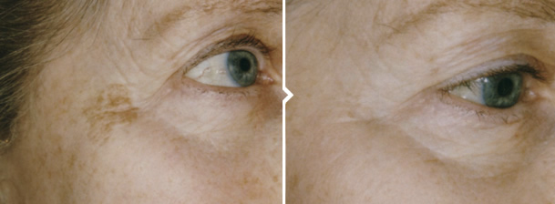 Skin Pigmentation Removal Treatment Around Eyes Before and After Photo