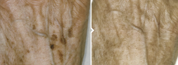 Skin Pigmentation Removal Treatment Back of Hand Before and After Photo