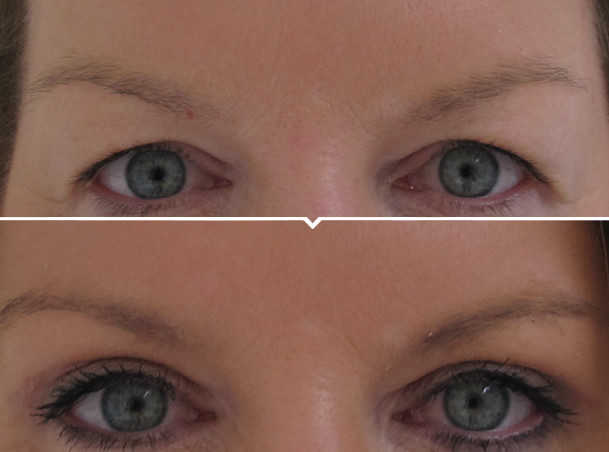 Upper Eye Lift Surgery Before and After Photo