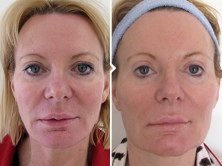 Vampire Facelift PRP Therapy Before and After Photo