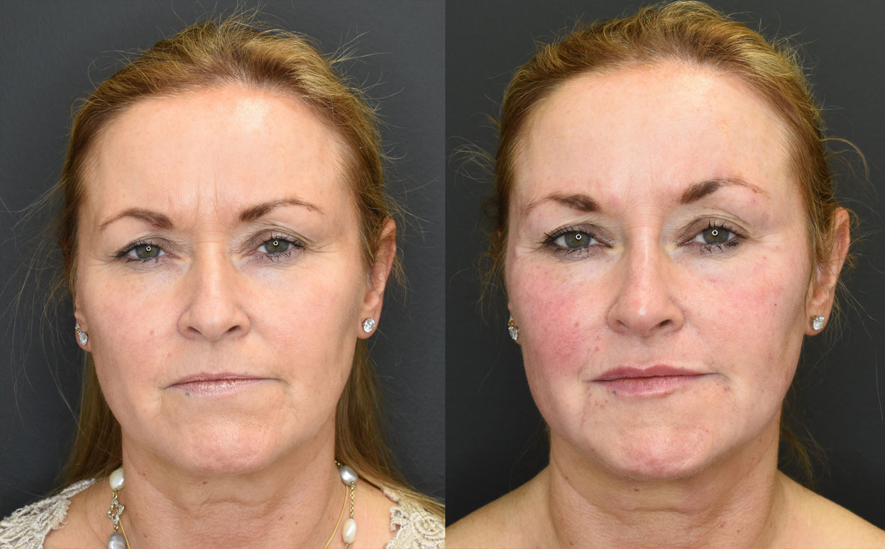 Volumetric Facelift Front Before and After Photo