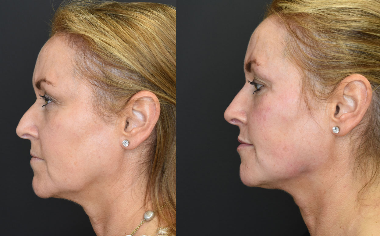 Volumetric Facelift Side View Before and After Pic