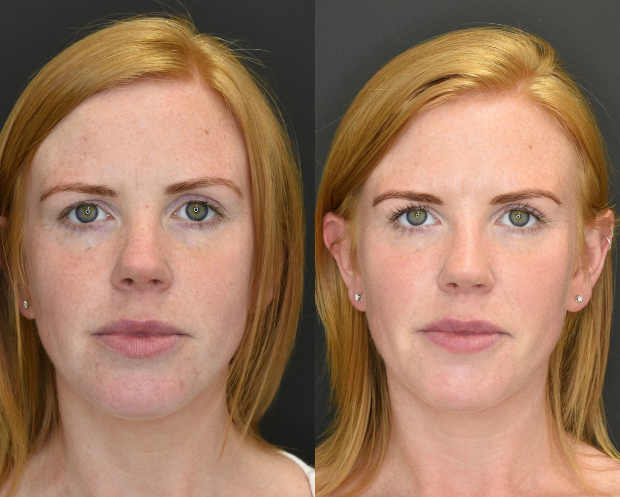 Volumetric Facelift Results Young Woman Before and After