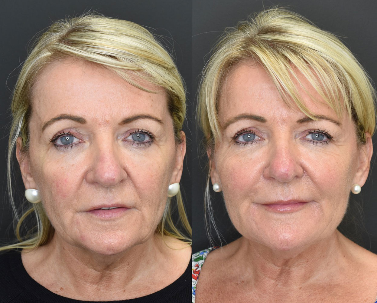 Volumetric Facelift Before and After Photo