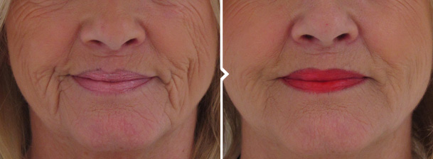 Wrinkle Filler Before and After Photo