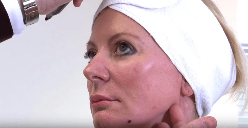 One Stitch Facelift Treatment Video