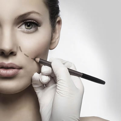 Cheek Filler Image