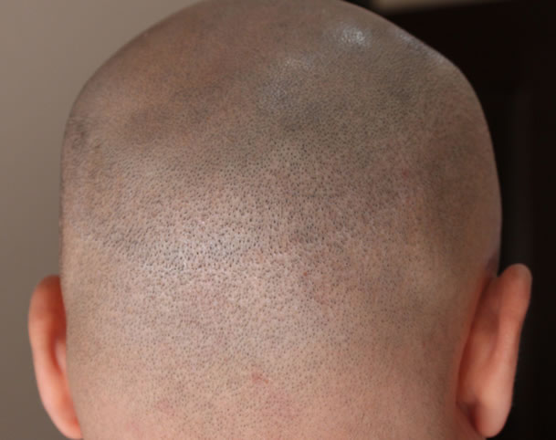 Hair Transplant Scarring Example Photo