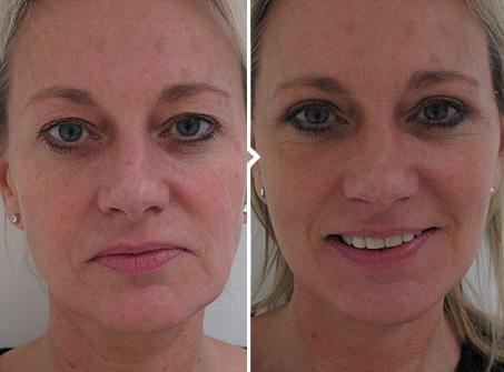 One Stitch Face Lift Surgery Before and After Photo