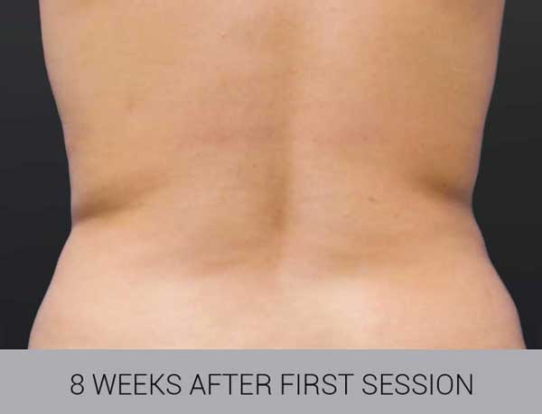 CoolSculpting before and after back image