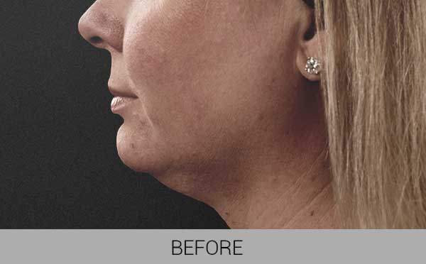 CoolSculpting before and after face image
