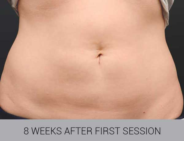 CoolSculpting before and after tummy image